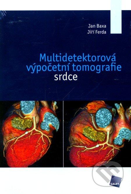 Multidetektorová výpočetní tomografie srdce - Jan Baxa, Jiří Ferda