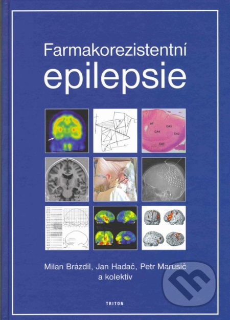 Farmakorezistentní epilepsie - Milan Brázdil, Jan Hadač, Petr Marusič, kolektiv