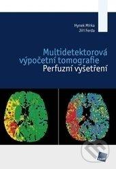 Multidetektorová výpočetní tomografie - Hynek Mírka, Jiří Ferda
