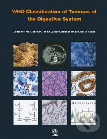 WHO Classification of Tumours of the Digestive System - Fred T. Bosman a kol.