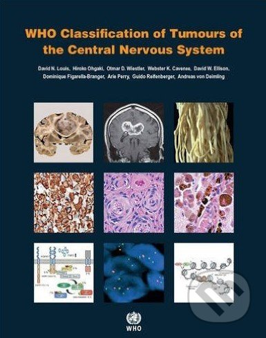 WHO Classification of Tumours of the Central Nervous System - Kolektív autorov